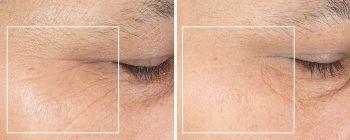 Beneficios radiofrecuencia facial